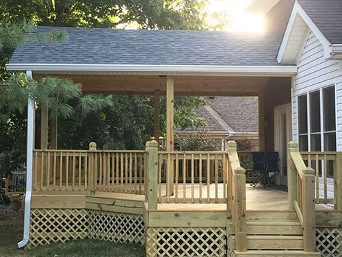 Covered Deck - Decks-Unlimited-Louisville-KY-Covered-Decks (11)